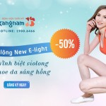 OFF 50% triệt lông New E-light: Vĩnh biệt violong – Khoe da sáng hồng